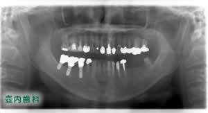 インプラント埋入術前パノラマ写真
